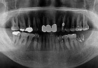左右の奥歯を抜歯・インプラント同時埋入 治療前