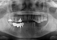 左下の顎にインプラントを埋入 治療前