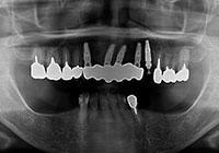 抜歯・インプラント同時埋入 治療後